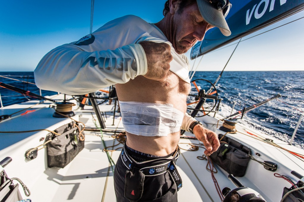 Tony Rae mostra la sua fasciatura a bordo di Team Vestas. Foto Carlin